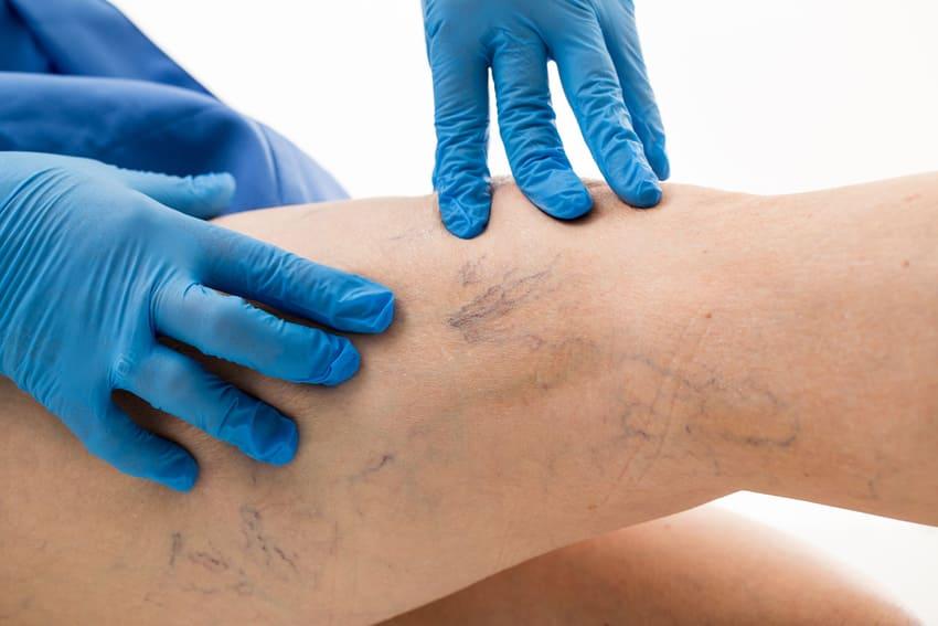 Krampfadern werden durch ein Venenkissen behandelt